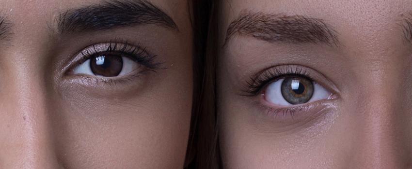 專家詳細說明黑眼圈成因,正確分出你是哪種黑眼圈,黑眼圈消除與預總整理!